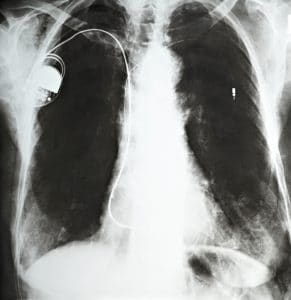 X-ray of patient with a pacemaker